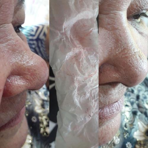 limpeza de pele e extração de cravos com produtos naturais