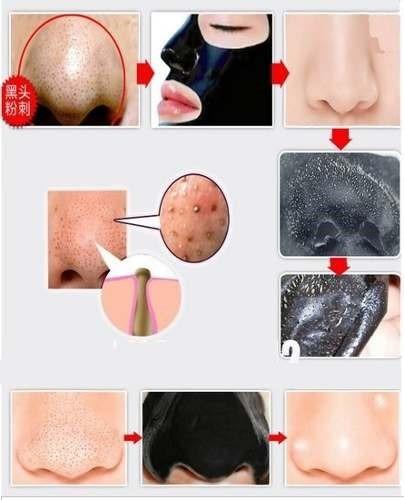 limpeza pele mascara cravo
