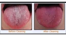limpiador de lengua en acero inoxidable de la india envio $0