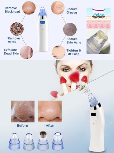 limpiador facial poros succión puntos negros acne espinillas