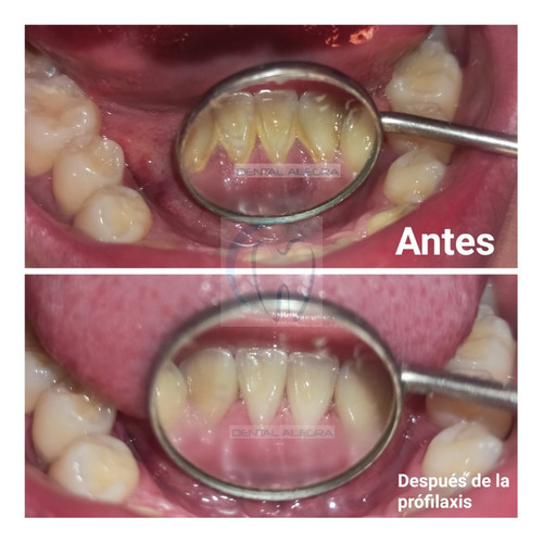 limpieza bucal, profilaxis, para eliminar sarro y manchas.