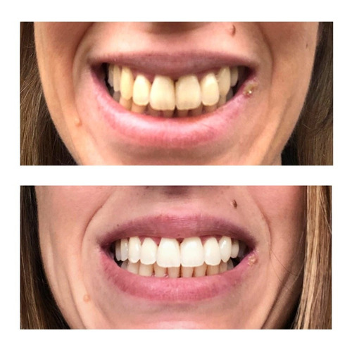 limpieza dental - dentista - odontologo
