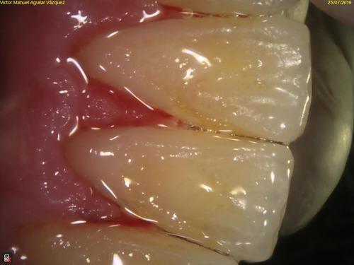 limpieza dental, quitate todo el sarro!!!