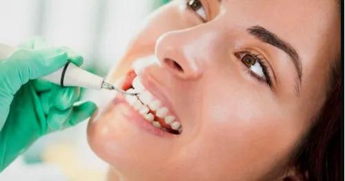 limpieza dental ultrasónica + aeropulidor multiflex