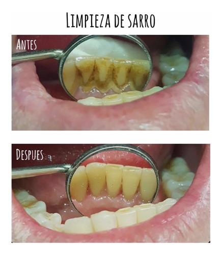limpieza dental y eliminación de sarro en consultorio dental
