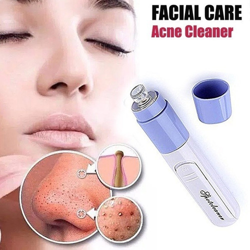 limpieza facial elimina espinillas barros acné