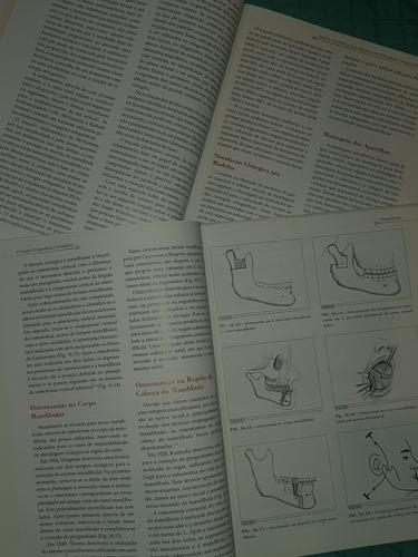 livro cirurgia ortognática e ortodontia 2° edição- vol 1 + 2