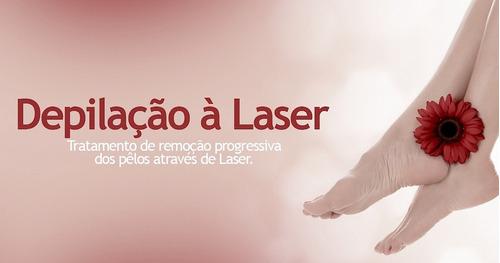 locação de laser diodo milesman