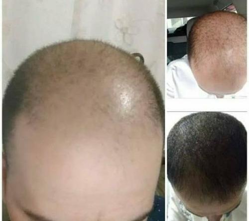 loção cresce barba, cabelo e sobrancelha