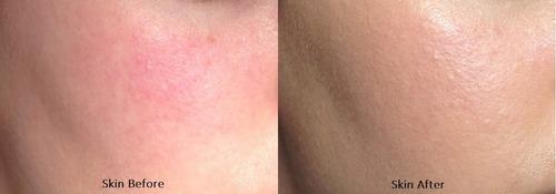 loreal paris bb crem anti-rojeces 4en1 magic skin beautifer