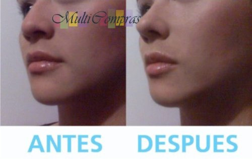 lote d10 corrector nasal nariz bella 30seg sin cirugia rulav