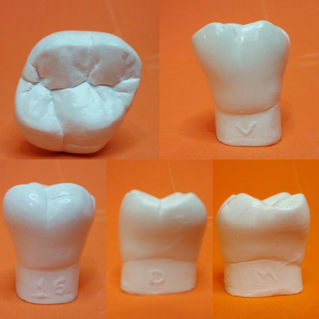 Macro Modelo Dental Estudo Gesso Ortodôntico Dente Macro