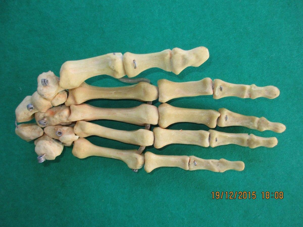 Encantador Estructura ósea Mano Humana Colección - Imágenes de ...