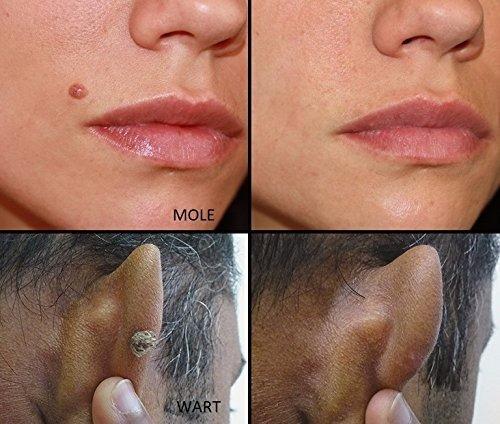 máquina lapiz eliminación acne verruga lunar envio