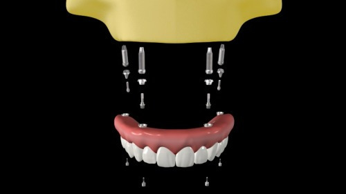 marketing para dentistas - 25 animações para mídias sociais