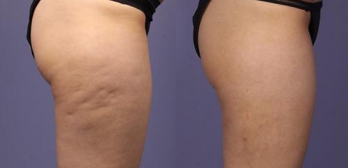 masajes reductores anti-celulitis modeladores manuales