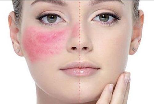 mascara gel calmante post peeling idraet