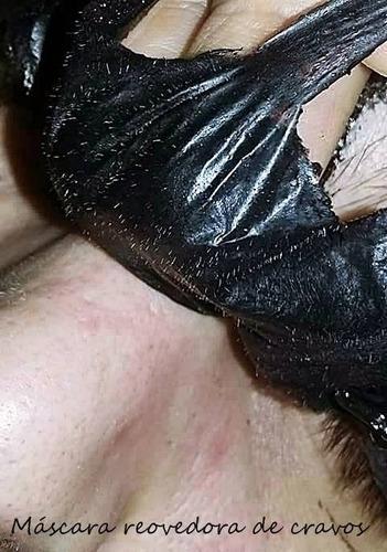 máscara para remoção de cravos black head