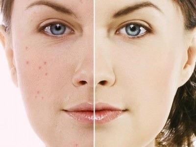 mascarilla limpiadora removedora puntos negros grasa acné