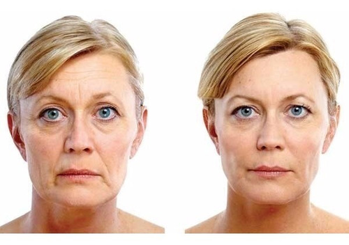 mascarilla reafirmante anti arrugas idraet