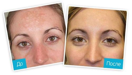 mascarilla removedora manchas miracle glow hiperpigmentación