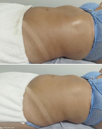 massagem drenagem linfática