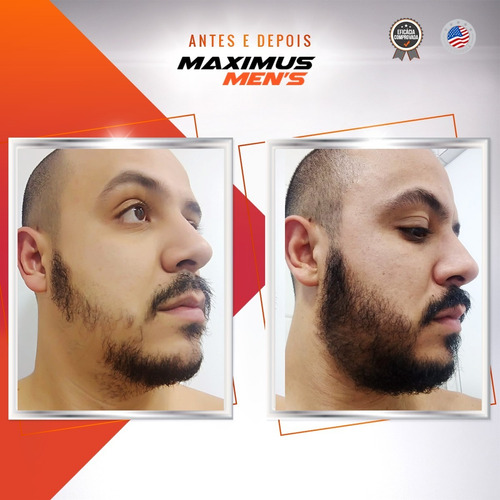 maximus beard - tratamento 90 dias - cresce barba + brinde