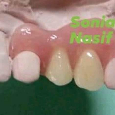 mecanica dental protesis en el dia