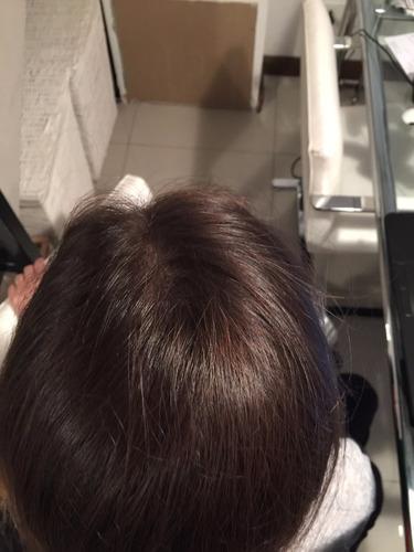 mesoterapia capilar detenga la caida y engrose del pelo!!