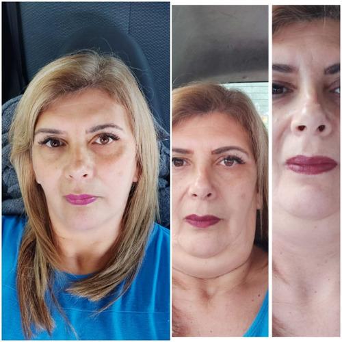 mesoterapia corporal y facial