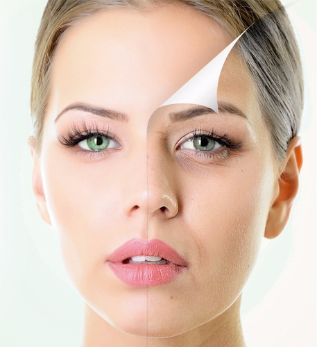 microfiller antiage roll on laca