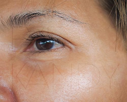 microneedling (cit) terapia inducción de colágeno