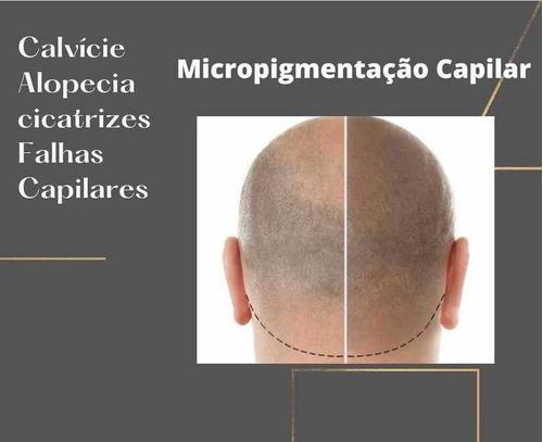 micropigmentação capilar