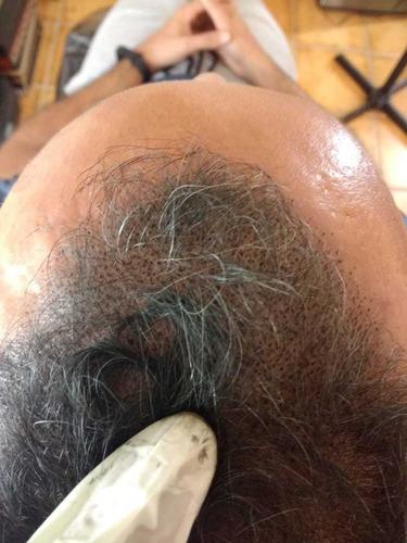 micropigmentacão capilar masculino e feminino