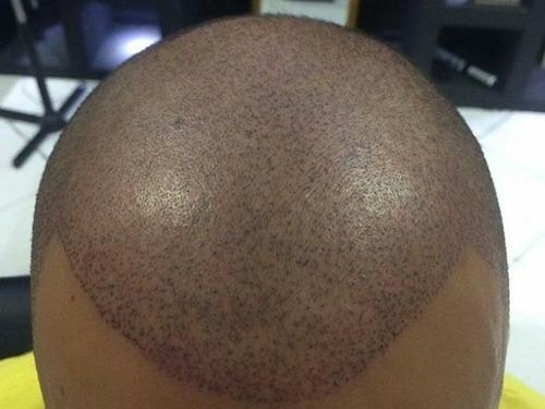 micropigmentação de sobrancelha e capilar