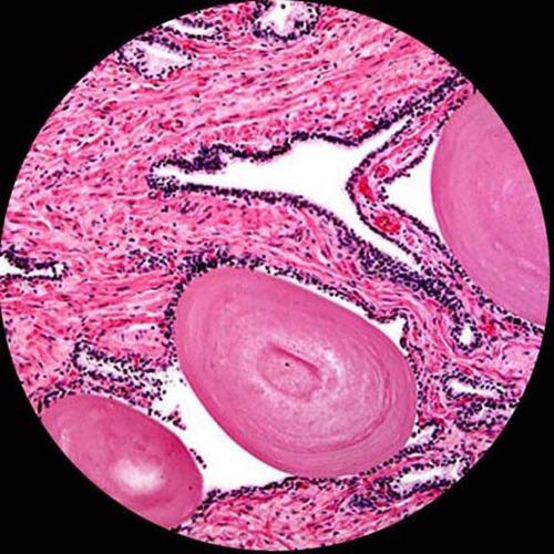 microscopio digital 40x-2500x 3d, usb camara 5mp profesional