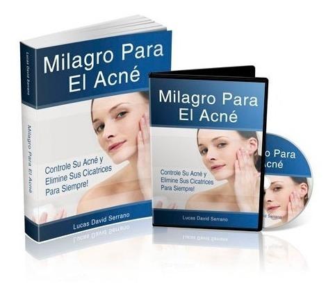 milagro para el acné, lucas serrano, controle su acné