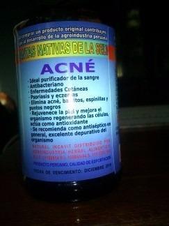 milagro para el acne,controlar el acné 3 frascos por 9990