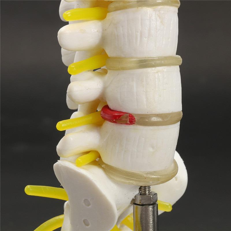 Mini Vértebras Lumbares Sacro Coxis Anatomía Médico Columna ...