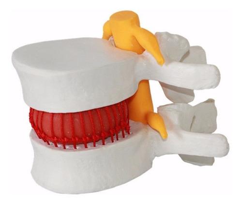 modelo anatómico interactivo de hernia discal