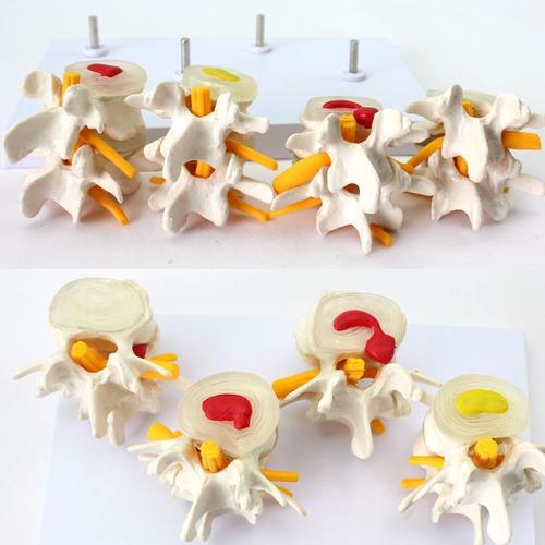 modelo anatómico vertebral comparativo