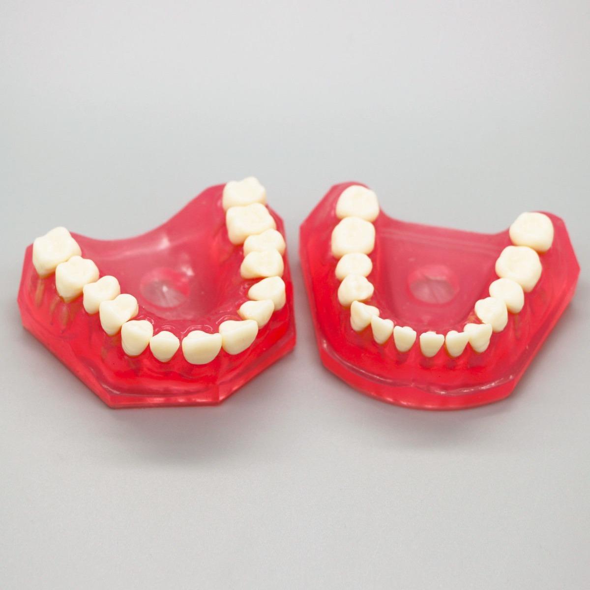 Modelo Dental Piezas Removibles Anatomía Odontología Dientes ...
