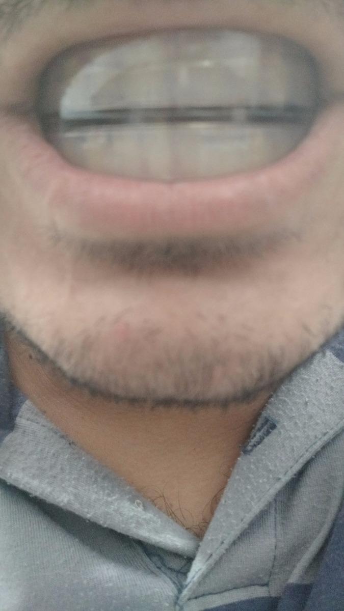 Moldeira Silicone Facil De Moldar Os Dentes Clareador Dental R 35