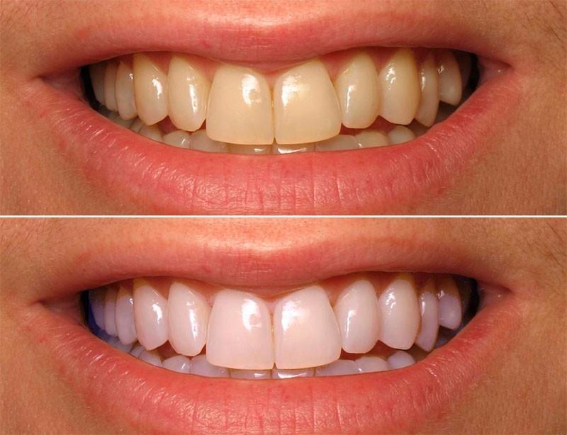 Moldeira Termomoldavel 1 Par P Clareamento Dental Clareador R 15
