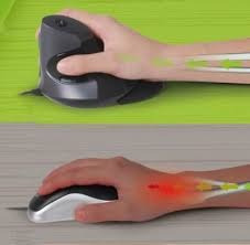 mouse ergonomico para sindrome tunel carpiano gratis envio
