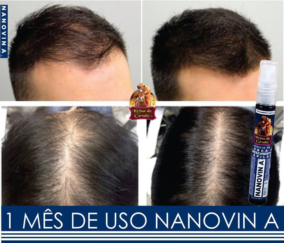 O óleo jojoba como tratar o cabelo