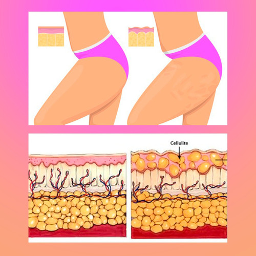 no combate a celulite,estria,flacidez da pele