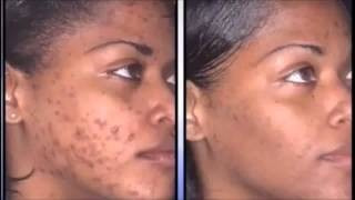 nu skin galvanica facial kit