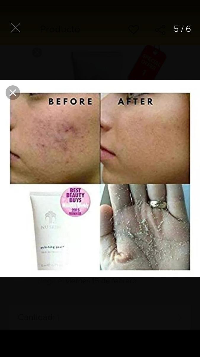 Nu skin testkezelő visszér probléma