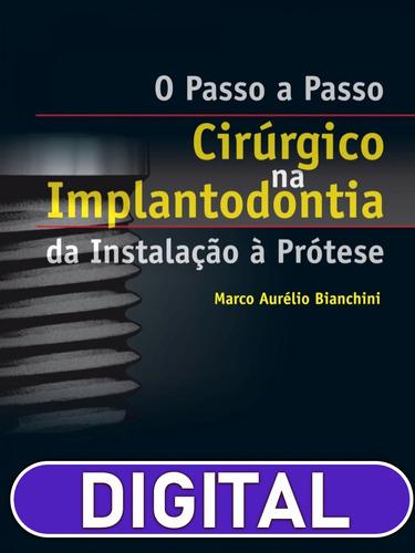 o passo-a-passo cirúrgico na implantodontia - da instalação